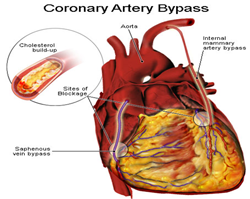 Multi-Vessel Coronary Artery bypass Surgery